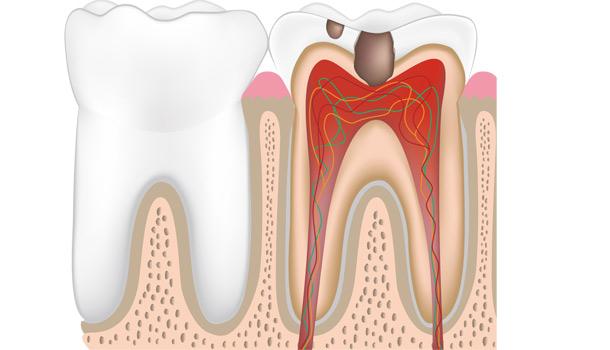 牙周炎到底是如何成功上位的?