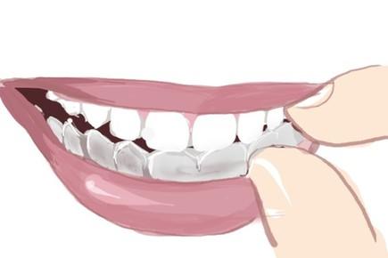 矯正後的牙齒又「歪」了,咋回事?
