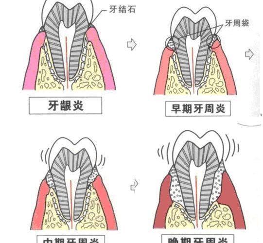 牙周病不去治療會自愈嗎?