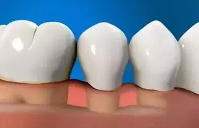 萎縮的牙齦還能「長」回來嗎?
