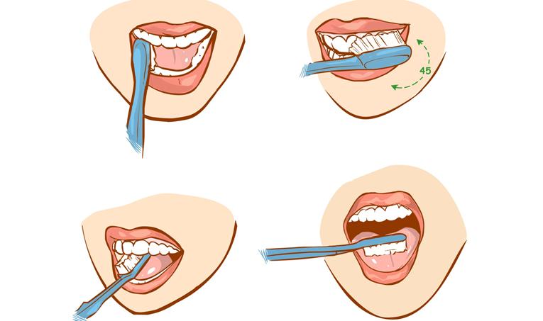 老年人保護牙齒的方法