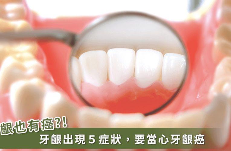 [新聞] 牙齦潰爛可能不是牙周病 這幾項檢查找出「牙齦癌」